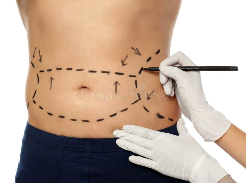 Marcas de dibujo del doctor en el cuerpo del hombre para la operación de la cirugía cosmética contra el fondo blanco imagen de archivo libre de regalías