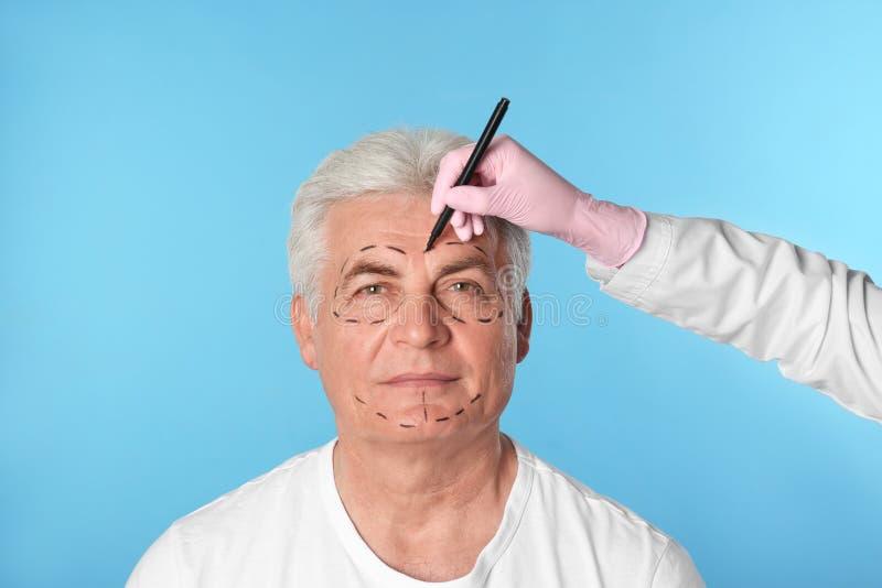 Marcas de dibujo del doctor en la cara del hombre para la operación de la cirugía cosmética foto de archivo libre de regalías