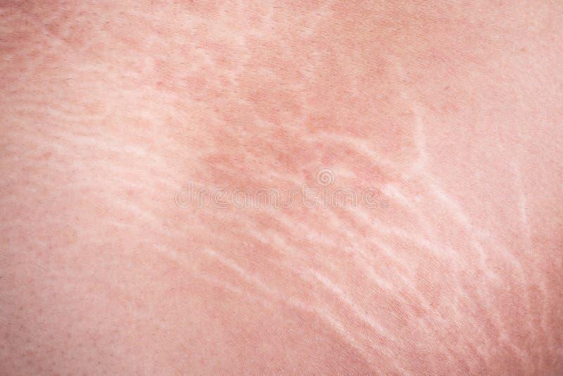 Marcas de estiramento da pele na coxa imagens de stock