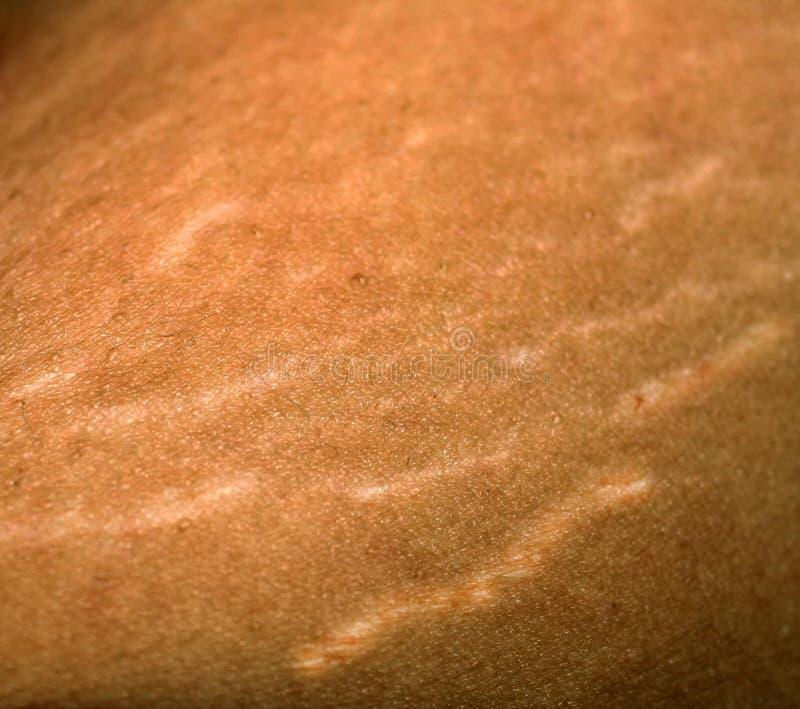 Marcas de estiramento na pele Cicatrizes no corpo Marcas de estiramento nos pés cellulite imagens de stock royalty free