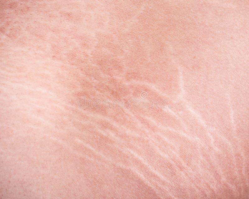 Marcas de estiramiento de la piel en el muslo fotos de archivo libres de regalías