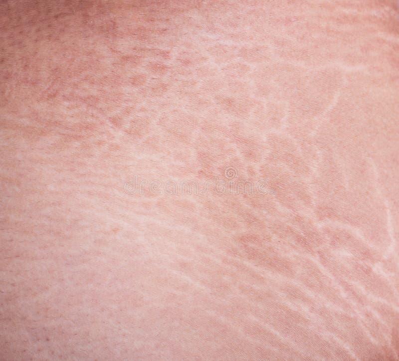 Marcas de estiramiento de la piel en el muslo foto de archivo