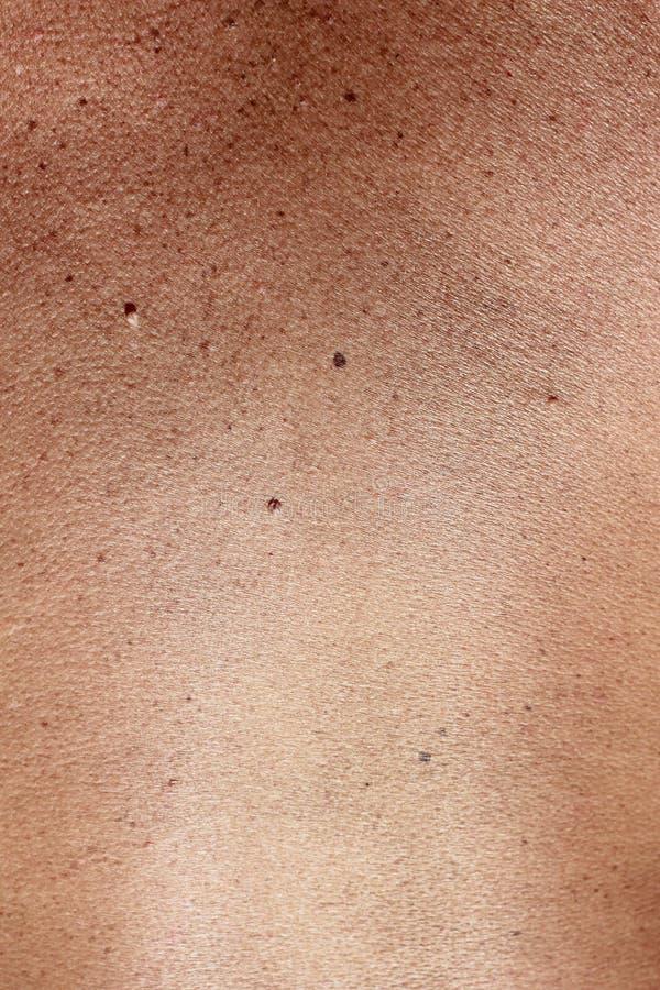 Marcas de nascença na pele imagem de stock