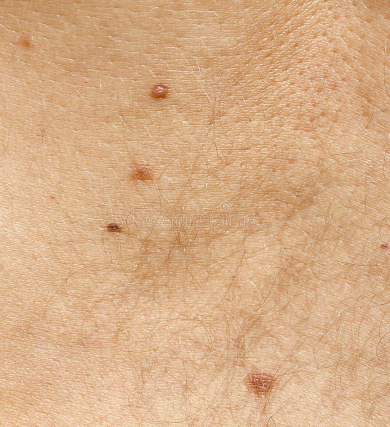 Marcas de nascen?a na pele como um fundo imagens de stock