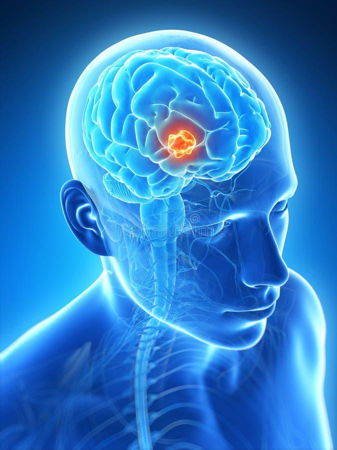 Markerad hjärntumör stock illustrationer