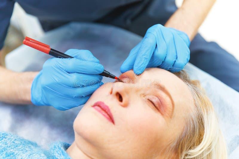 Markierungsgesicht der älteren Frau alt von der plastischen Chirurgie am receptio lizenzfreies stockbild