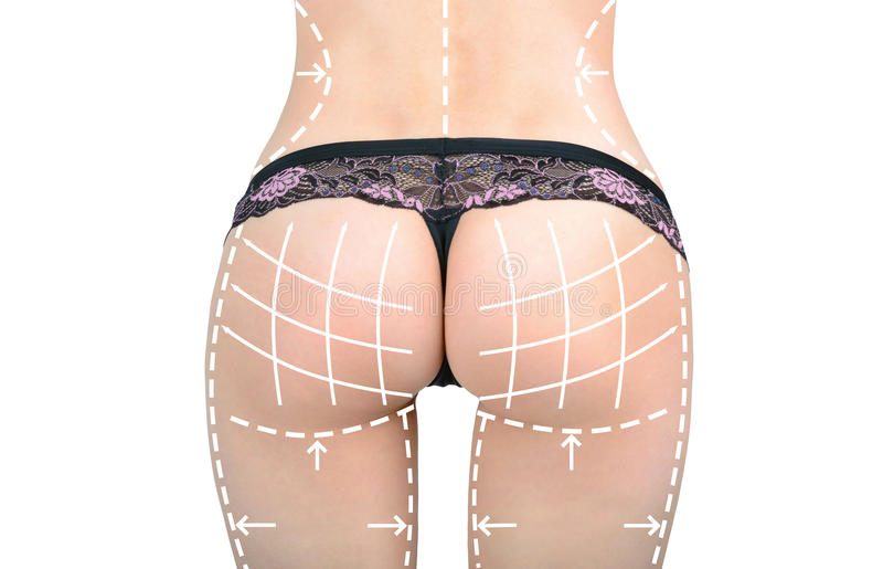 Marks on the women's buttocks, waist and legs before plastic surgery stock image