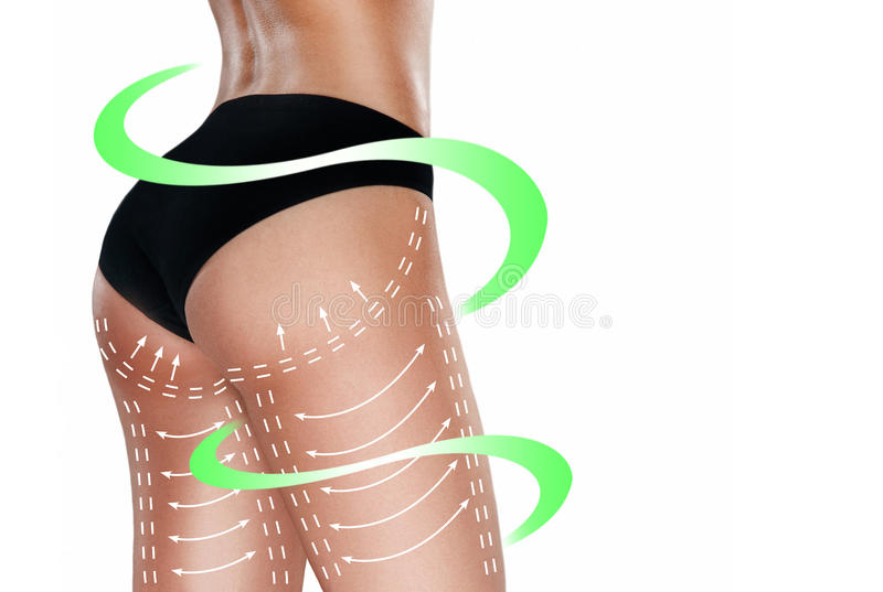 Marks on the women`s buttocks, waist and legs before plastic surgery. The concept of plastic surgery royalty free stock images