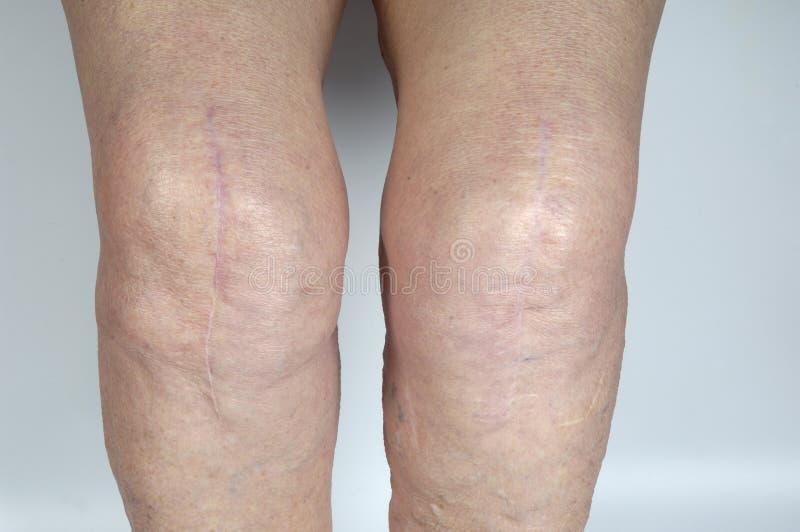 Marque con una cicatriz en la rodilla de una mujer mayor, fotos de archivo libres de regalías
