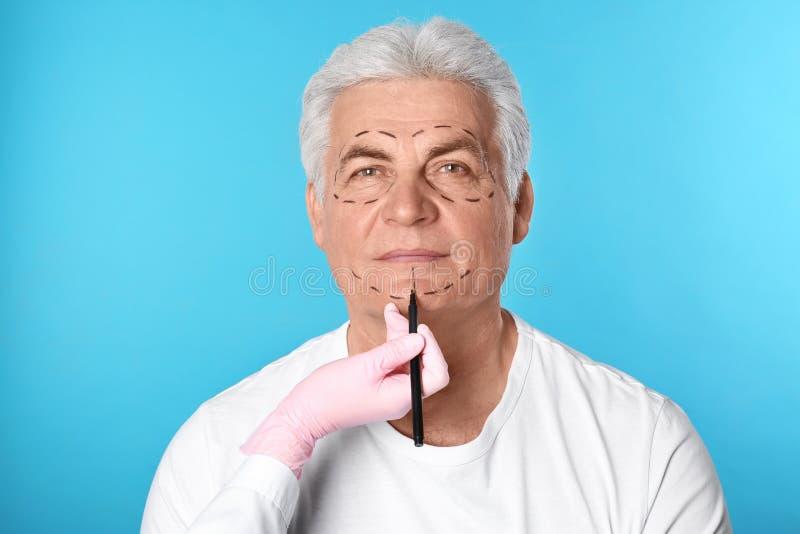 Marques de dessin de docteur sur le visage de l'homme pour l'opération de chirurgie esthétique photographie stock libre de droits