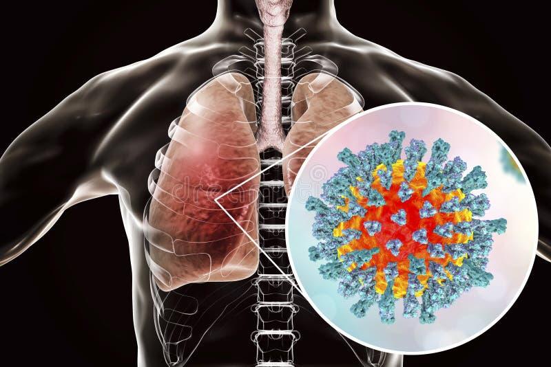 Masernviren im menschlichen Atmungssystem vektor abbildung