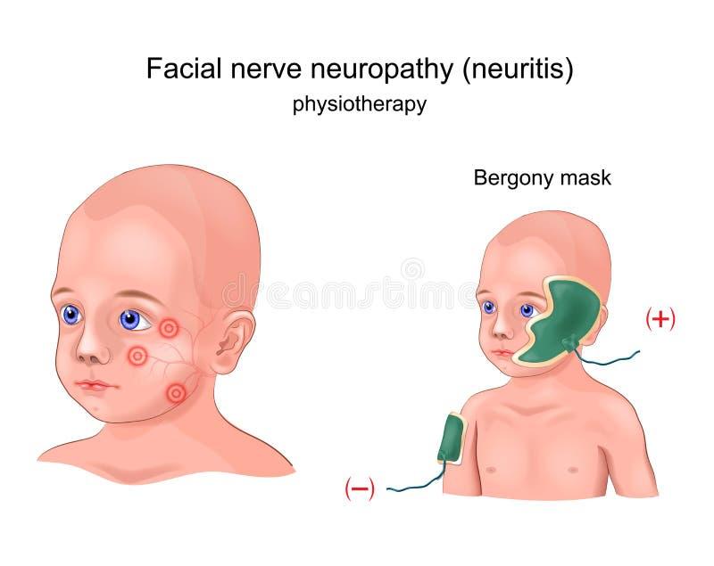 Masque de Bergony de physiothérapie illustration stock