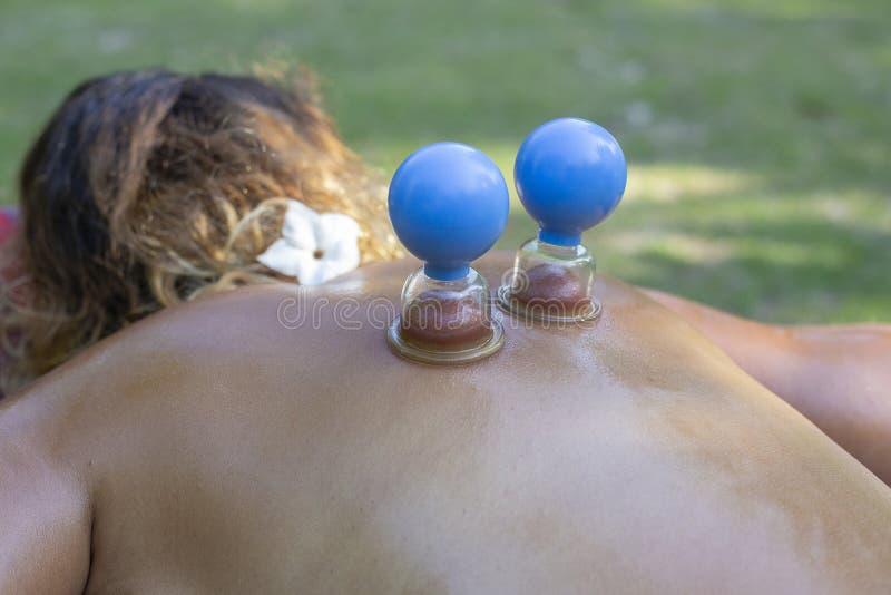Massage med krus av cellulite på kroppen av patienten Behandling av överskottvikt utomhus i natur royaltyfri foto