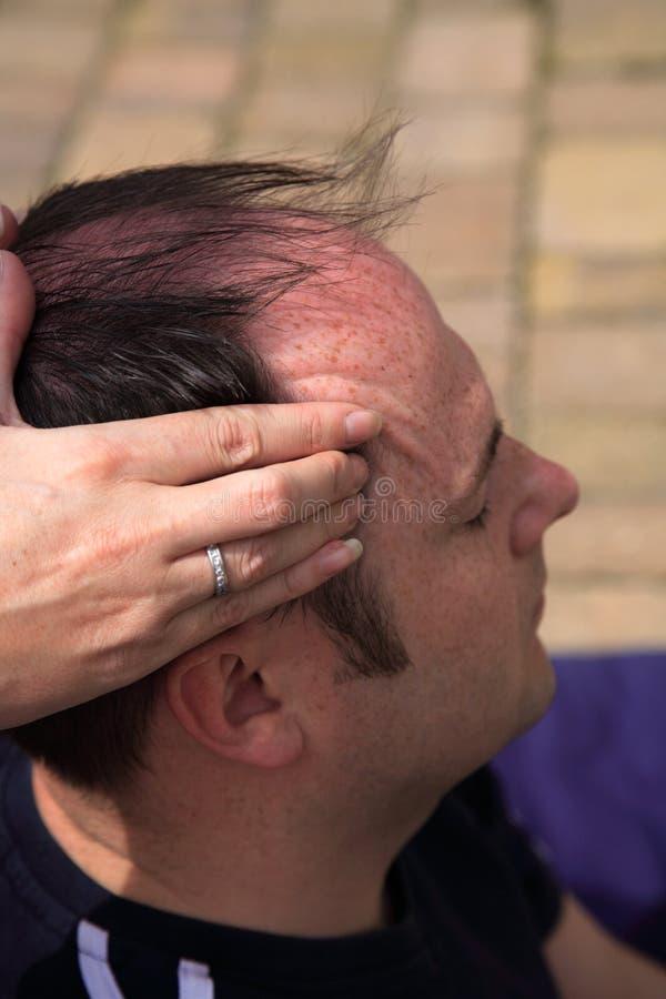 Massage zu den Tempeln stockbilder