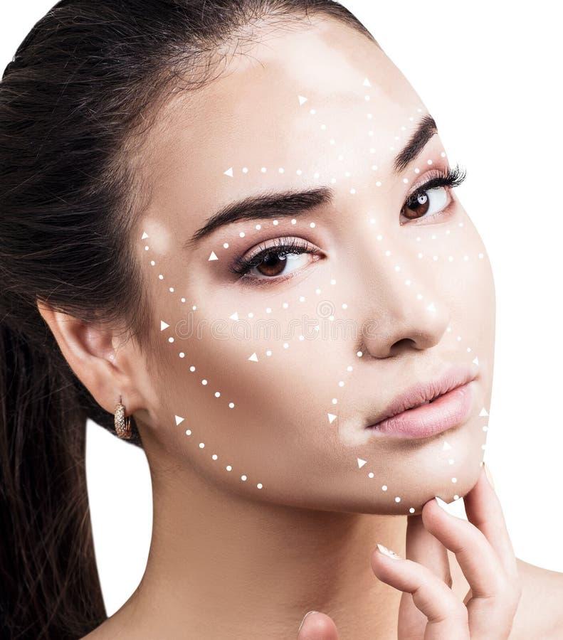 Massagelinjer på kvinnlig framsida med vitiligo visar riktningar arkivbilder