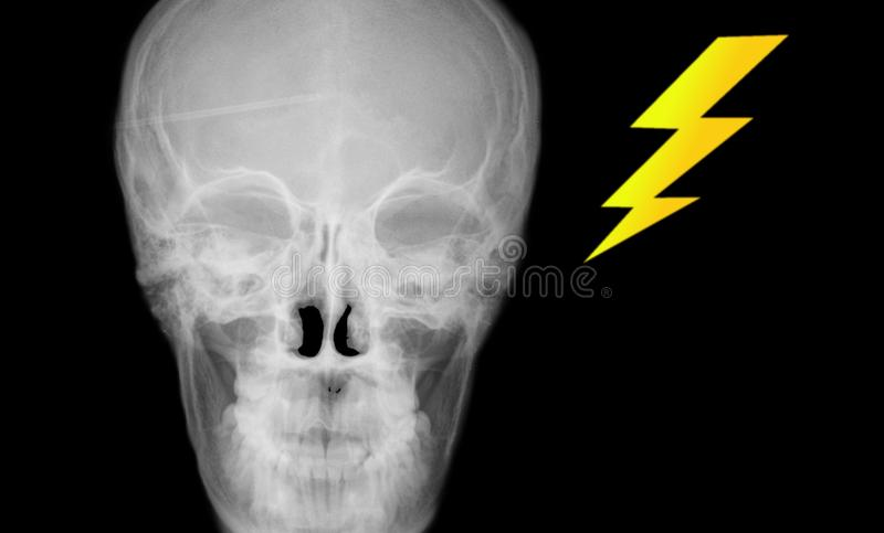 Massive headache stock image