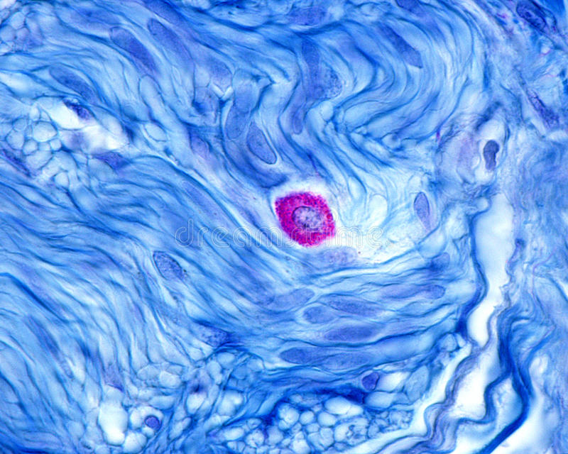 Mast cell. Or mastocyte with its cytoplasm filled with large granules rich in histamine and heparin. Outside, the smooth muscle fibers are stained in blue royalty free stock image