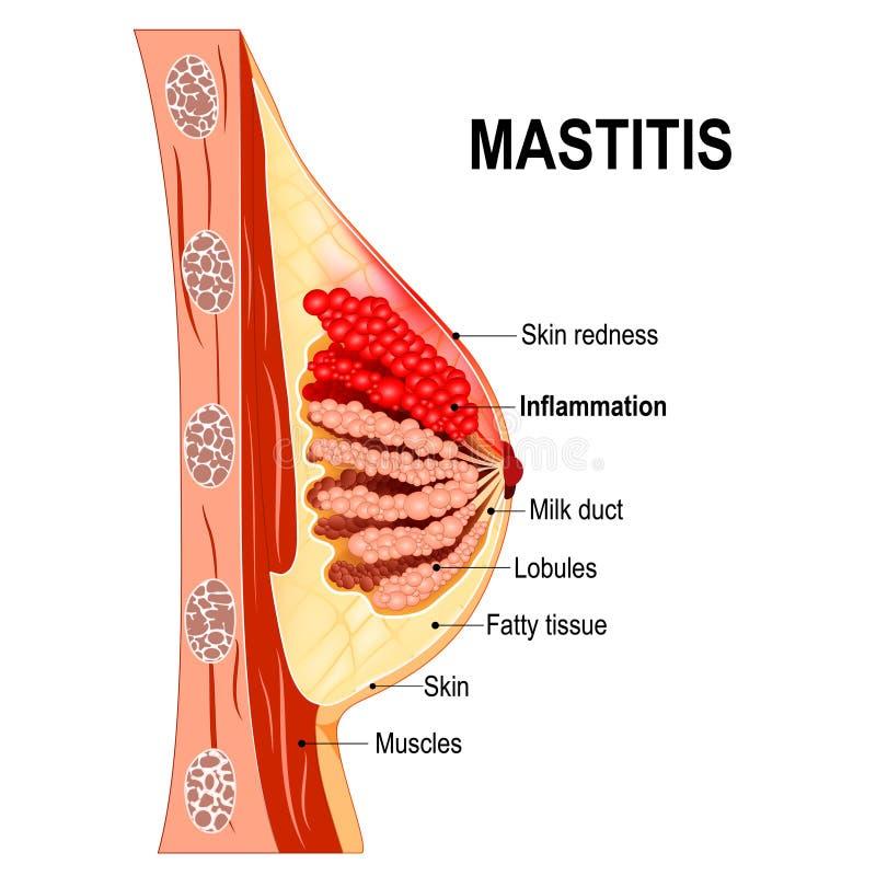mastitis Przekrój poprzeczny mammary gruczoł z rozognieniem o ilustracja wektor