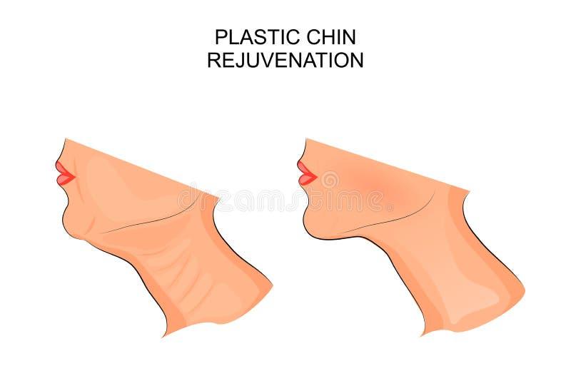 mature över plastikkirurgiwhitekvinna kirurgisk korrigering av hakan royaltyfri illustrationer
