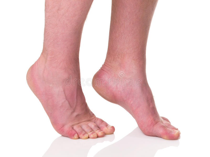 Download Mature Man Barefoot With Dry Skin Stock Images - Image: 26901994
