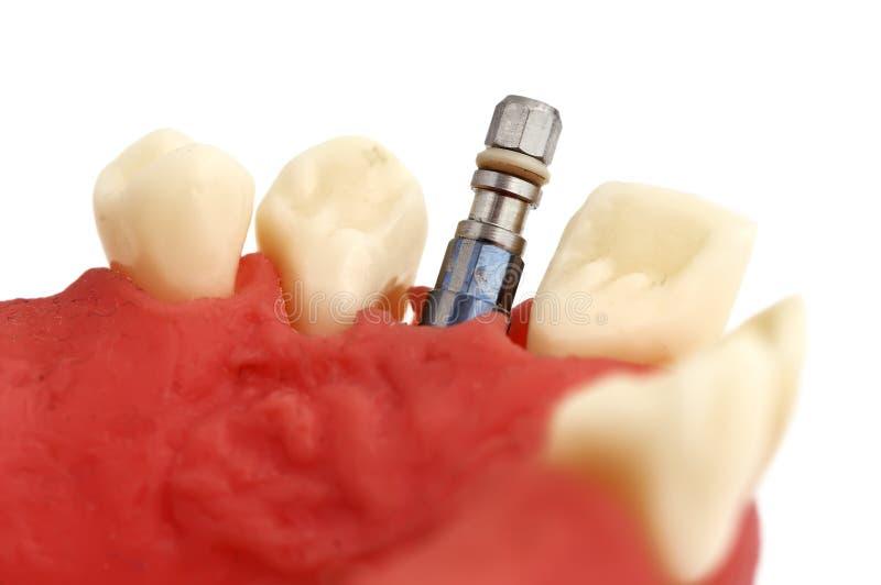 Maxila e implante foto de stock