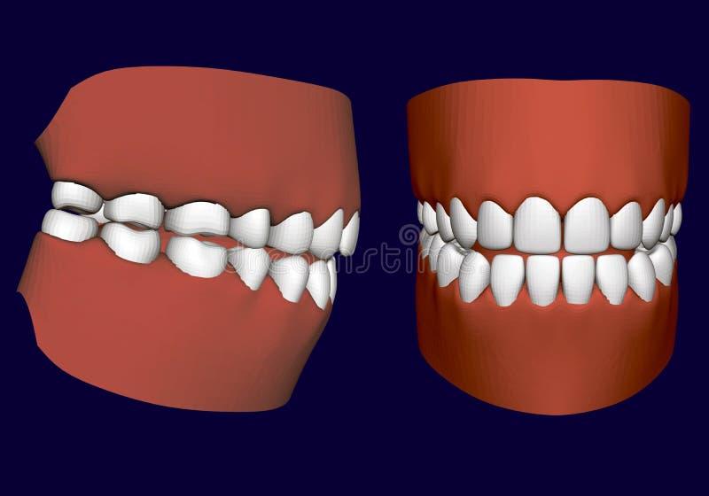 Maxila humana com dentes Lado e Front View 3d Maxila isolada em um fundo branco Dentes humanos saudáveis Dentes protéticos ilustração stock