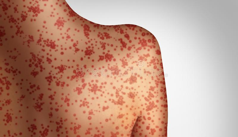 Measles Concept. As a deadly outbreak immunize,disease and viral illness as a contagious chickenpox or a skin rash in a 3D illustration style vector illustration