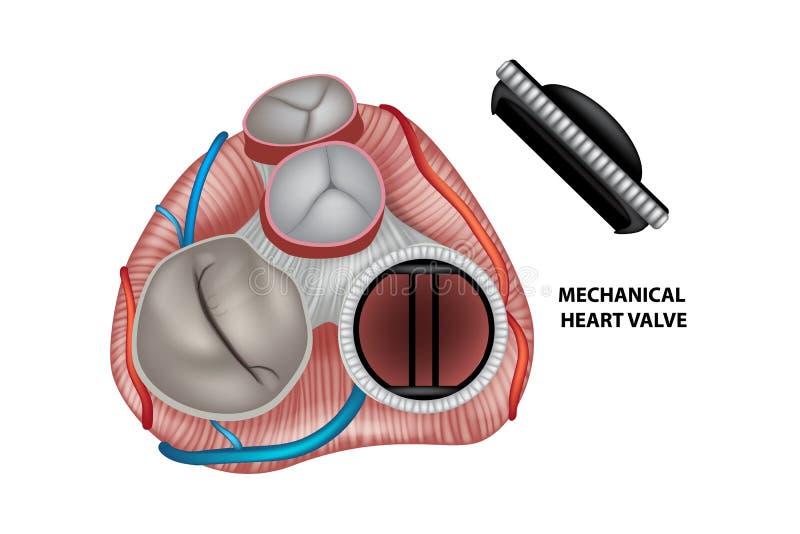 Mechanical artificial valve stock illustration