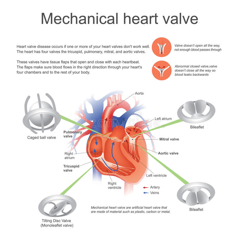 Mechanical heart valve. Vector, Illustration Design. stock illustration