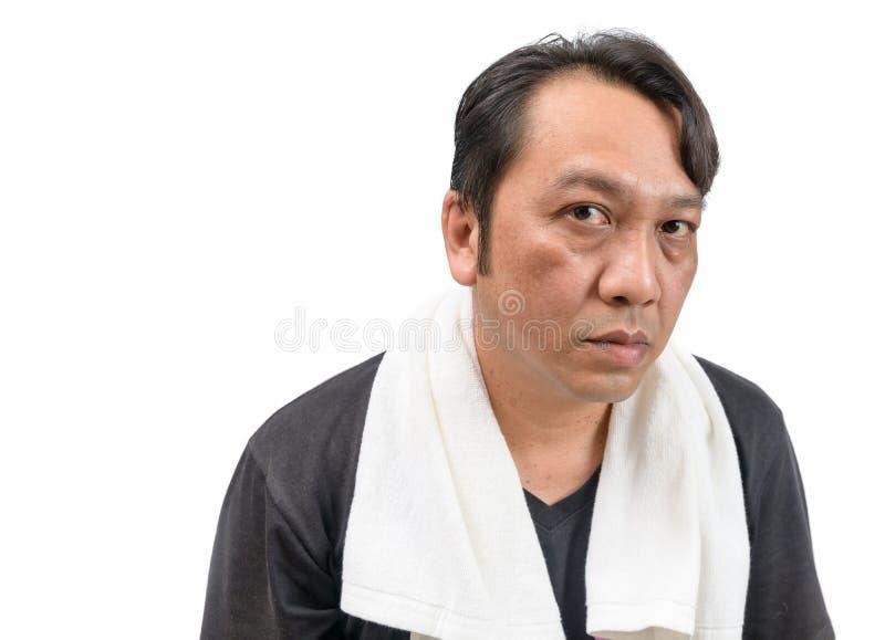 Medelålders asiatisk man med melasma royaltyfri bild