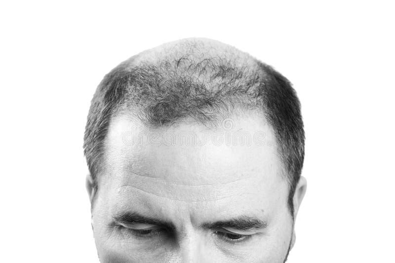 Medelålders man som angås av den svartvita alopeci för flintskallighet för hårförlust arkivbild