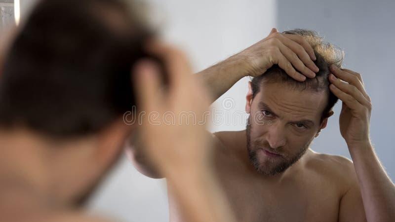 Medelålders man som ser i spegeln på hans skalliga lappar, problem för hårförlust royaltyfri foto