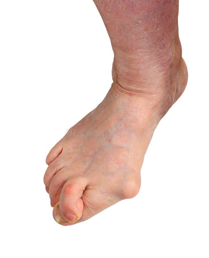 Medetcin, borsite dell'alluce valga, gamba con borsite dell'alluce valga di alluce di deformità, fotografia stock
