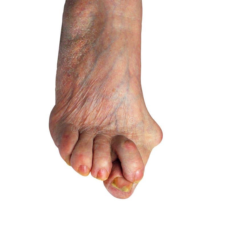 Medetcin, borsite dell'alluce valga, gamba con borsite dell'alluce valga di alluce di deformità, immagini stock