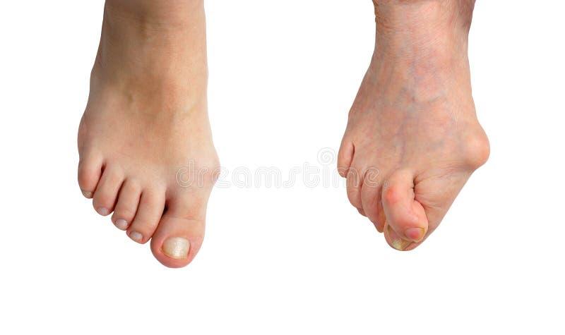 Medetcin, juanete del valgus, etapa inicial y etapa avanzada de la enfermedad, pierna con el juanete del hallux del valgus de la  fotografía de archivo libre de regalías