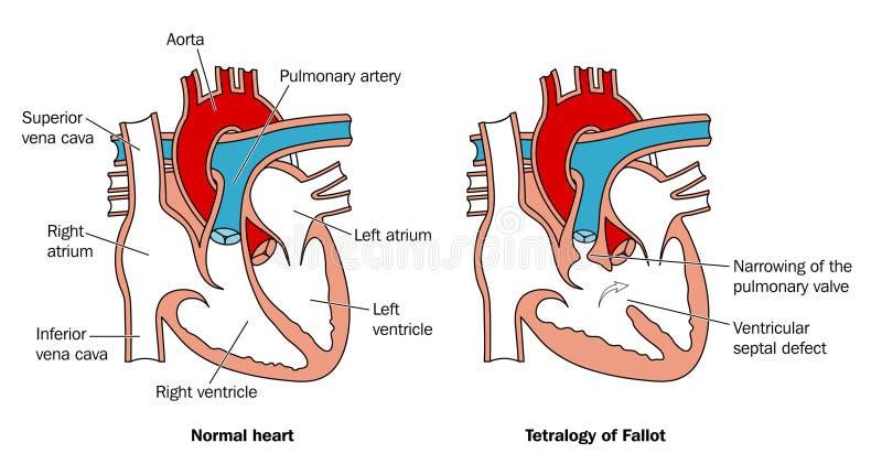medfödd defekthjärta vektor illustrationer