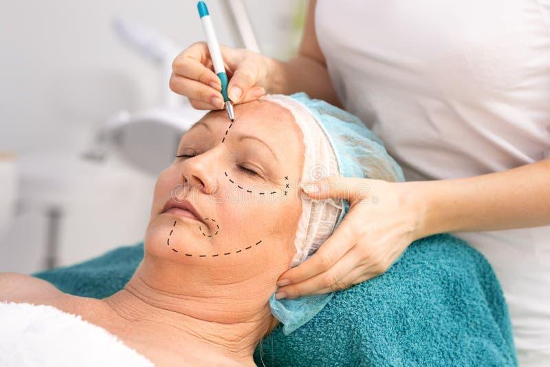 Mediados de mujer de la edad con la marca de la corrección para la cirugía plástica imagenes de archivo