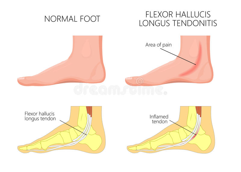 Medial kostki injury_Flexor hallucis tendonitis ilustracja wektor