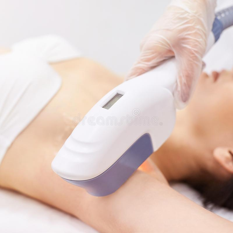 Medical beauty laser cosmeology procedure. Young female at salon. Professional doctor. Woman skincare technology. Hair removal stock image