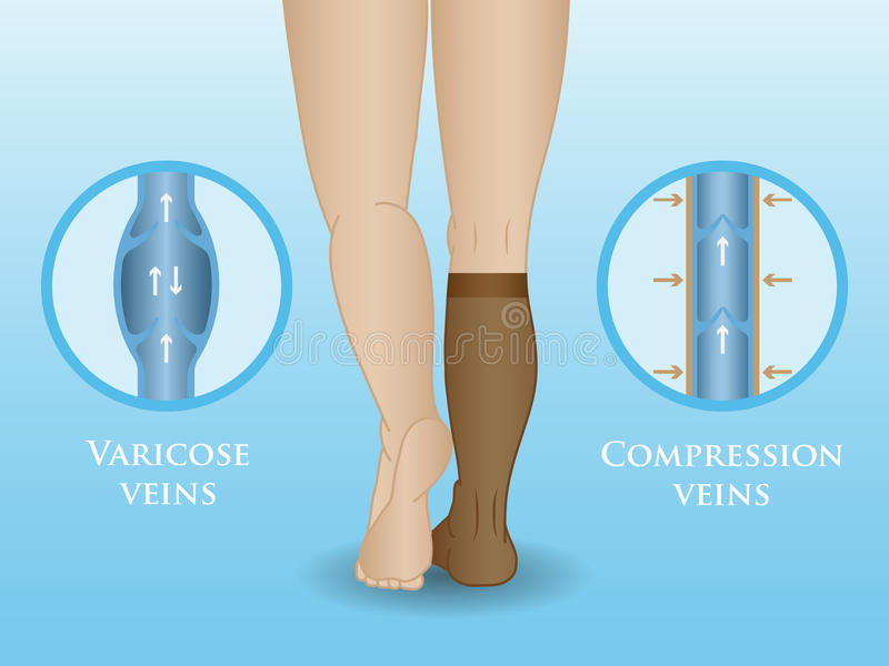 Medical compression hosiery stock illustration
