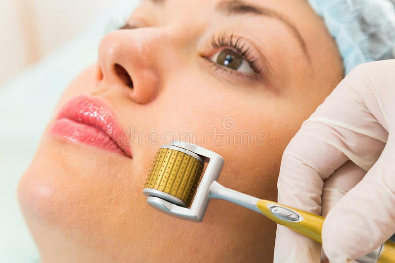 Medical cosmetic procedure stock photography