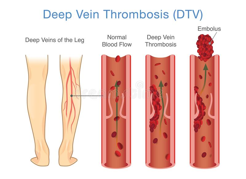 Medical Diagram of Deep Vein Thrombosis at leg area. Illustration about abnormally of blood flow vector illustration