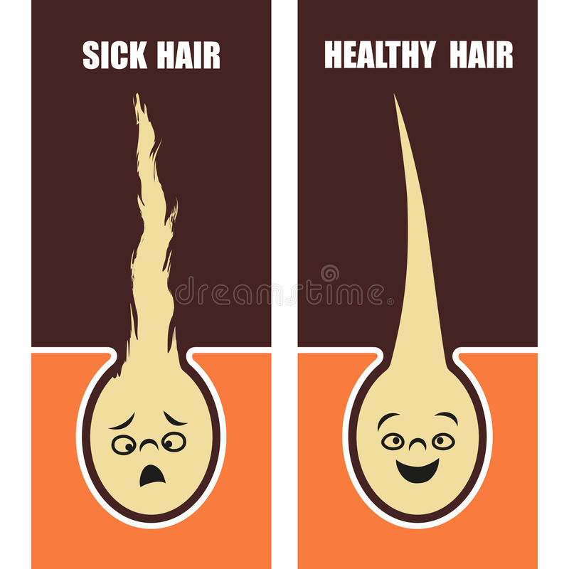 Medical Educational poster, sick and healthy hair, vector illustration. royalty free illustration