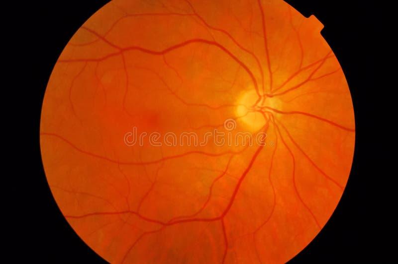 Medical fundus photo of macula royalty free stock photo
