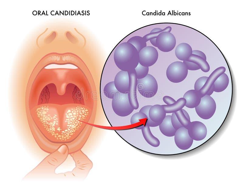 Medical illustration of oral candidiasis stock illustration