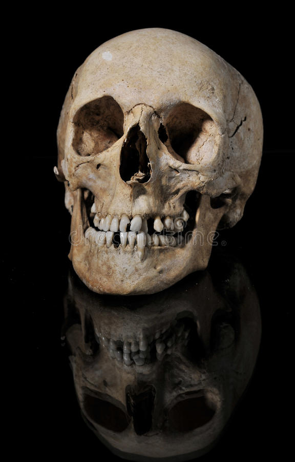 Free Medical Model Of The Human Skull Royalty Free Stock Photo - 19387115