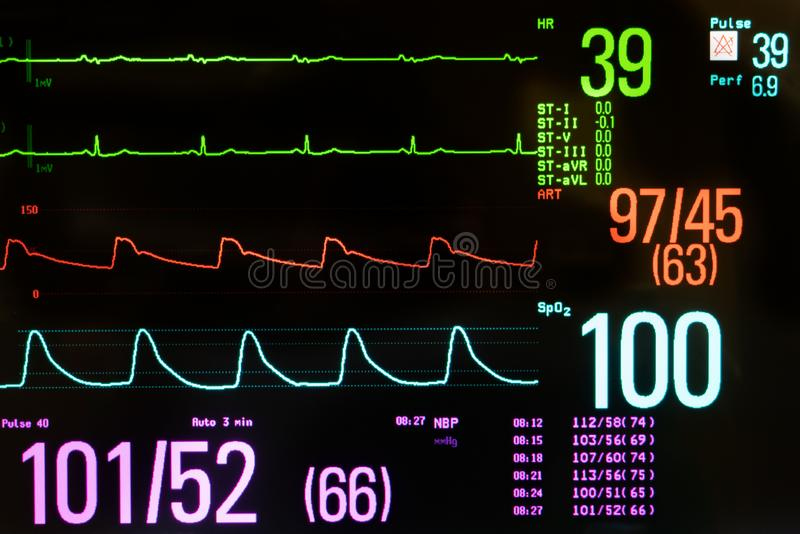 Medical Monitor Showing Bradycardia and Hypotension stock photo