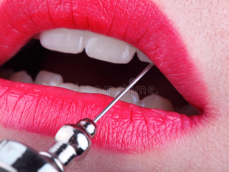 Medical needle in the female mouth. Medical needle in the mouth of a woman with painted lips, concept of injection stock photography
