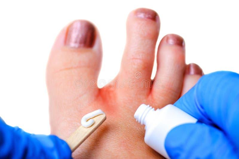 Medical pedicure. Foot hygiene. Fungus treatment. Spa skin care.  stock image