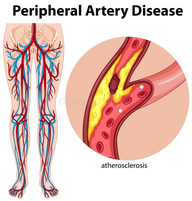 Free Medical Peripheral Artery Disease Stock Photos - 194540803